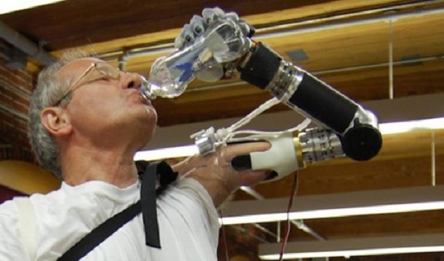 prosthetic-arm-01-600
