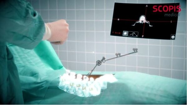 Microsoft HoloLens becomes an AR assistant for spinal surgery 600